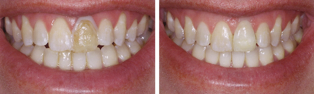 Cosmetic Dentist Cranbury Nj 08512 Cosmetic Dentistry