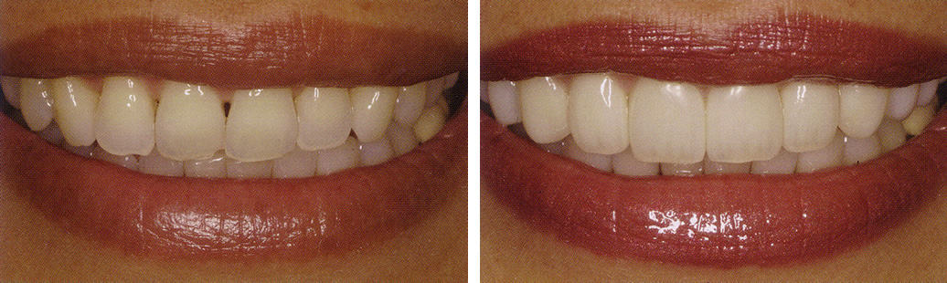 Gap Teeth Before And After. Teeth that are chipped,