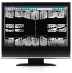Dental Digital X-Rays in Cranbury, NJ